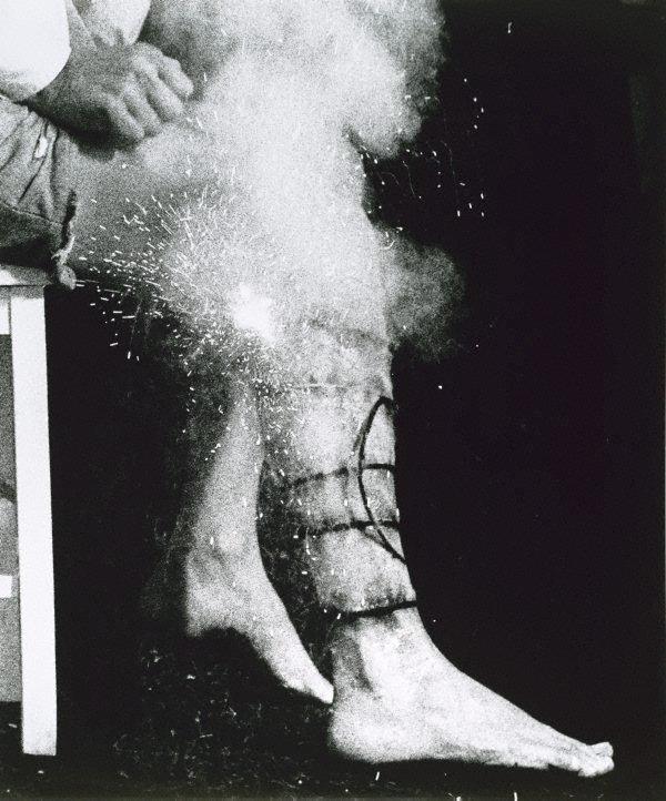 An image of Integration 3 (Leg spiral)